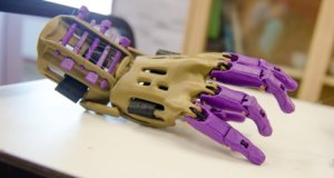 """A 3D printed """"helping hand"""" prosthetic"""